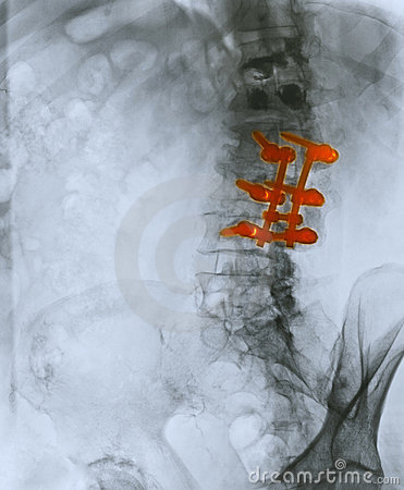 X-ray showing spinal fusion