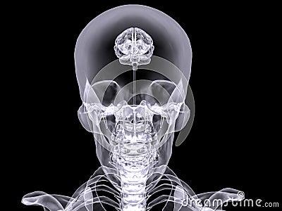 X-ray small brain