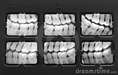 X-Ray of Teeth
