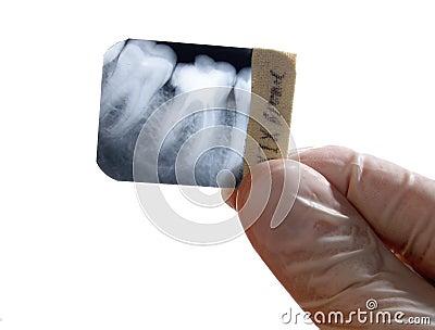 X-ray teeth diagnostics