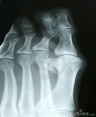 X-ray of toes