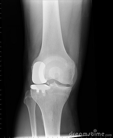 X ray of a unilateral knee replacement