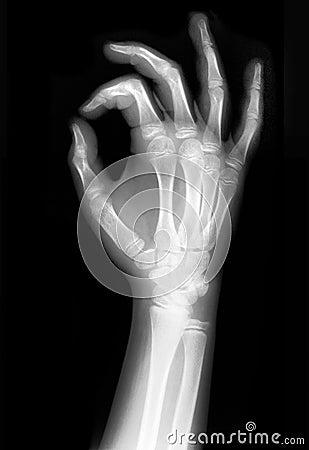 X-rayed Hand