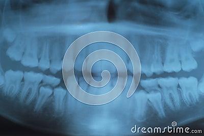 X rays of teeth