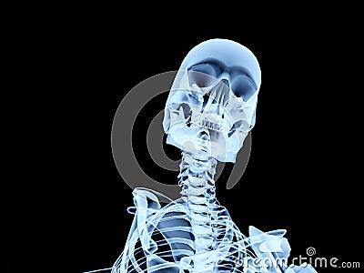 Xray Bone 3
