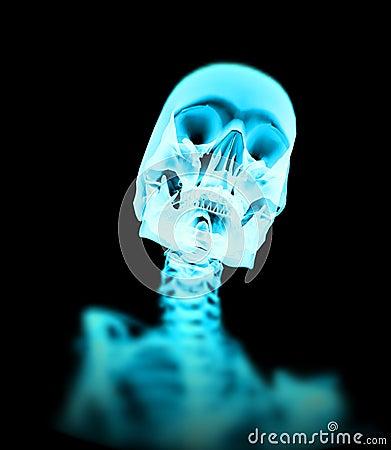 Xray Bone 5