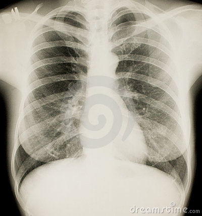 Xray of chest, normal