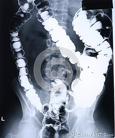 Xray/colon