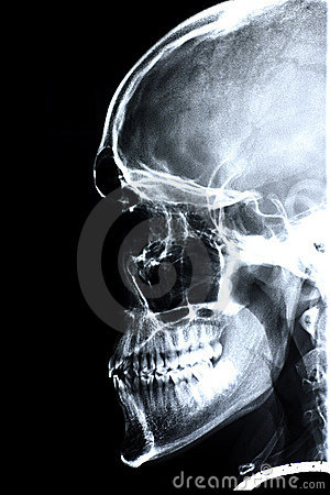 Xray/Face side
