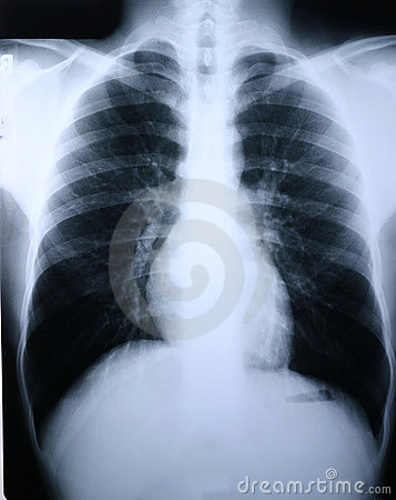 Free Xray/lung Stock Images - 48064
