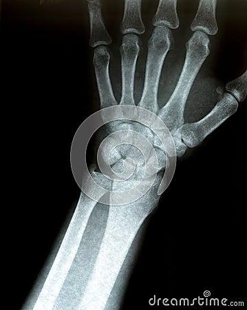 Xray of a wrist