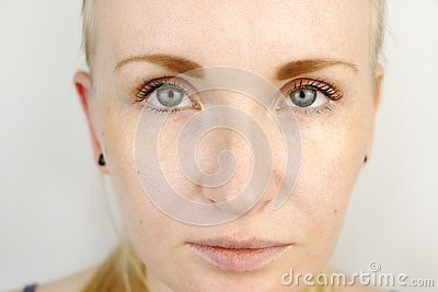 Young beautiful blond woman with dry lips Stock Photo