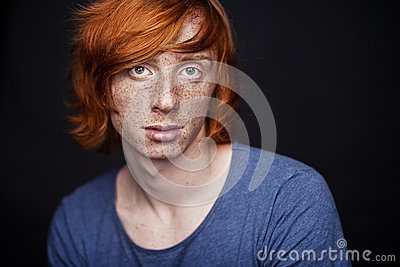 Young man with freckles