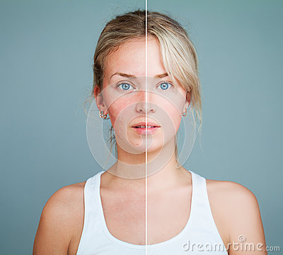 Free Young Model Woman With Skin Problem Stock Photo - 90717890