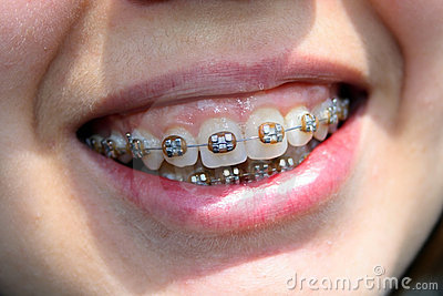 Young woman smile with bracket