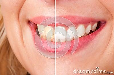 Zahnmedizinisches Weiß werden