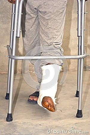 Zerbrochene Füße