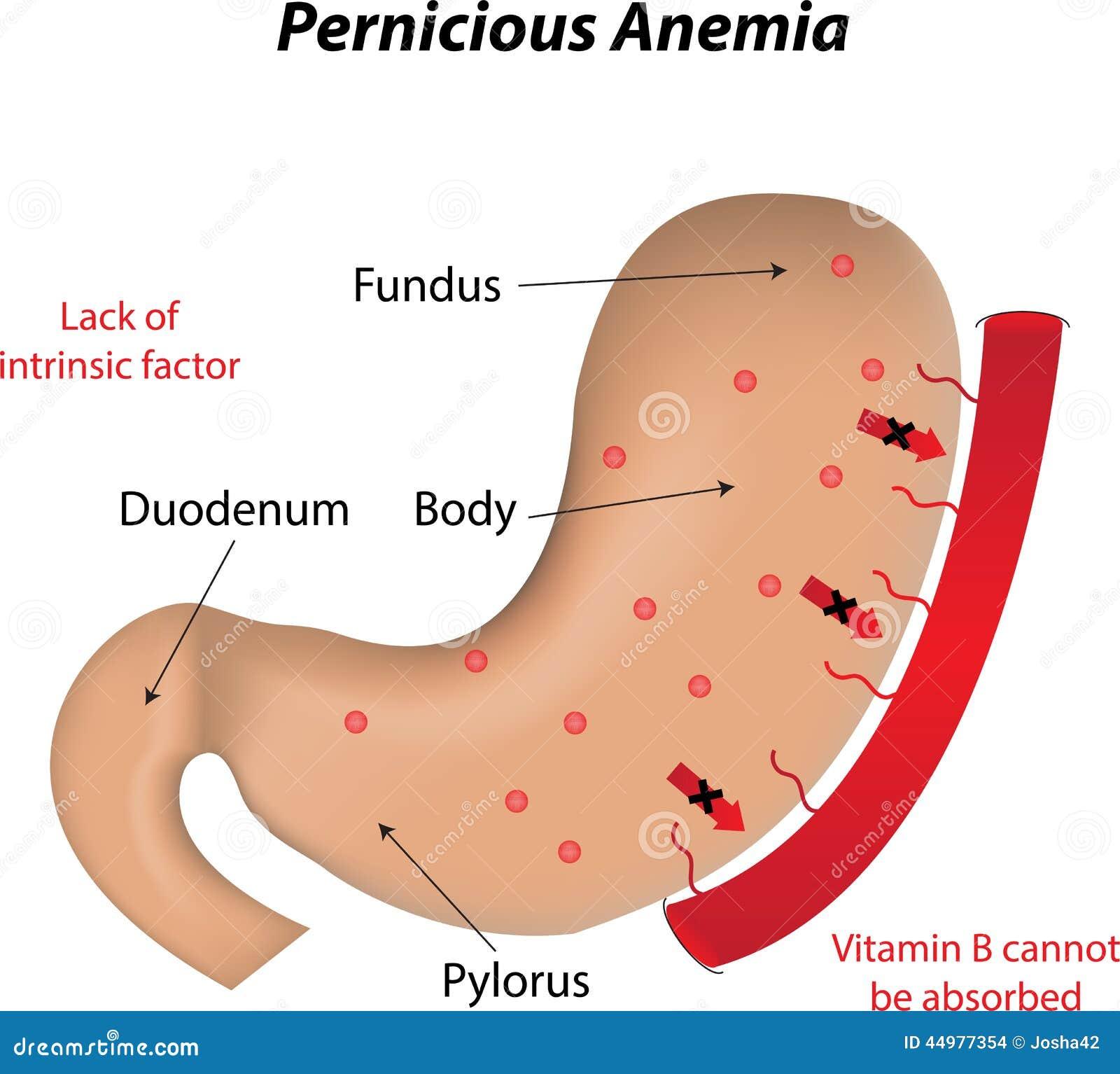 Пернициозная анемия фото