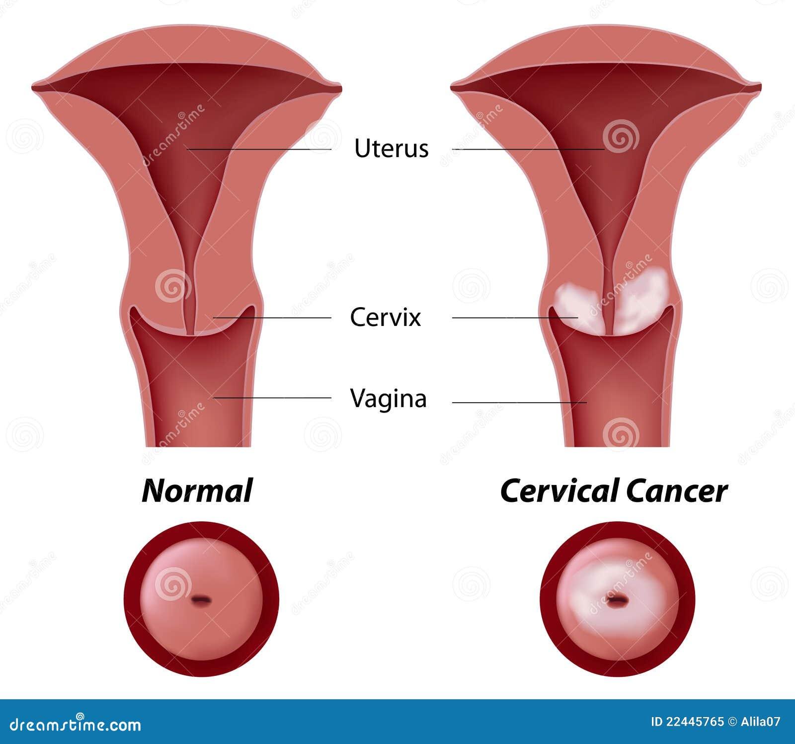 Рак Цервикальный фото