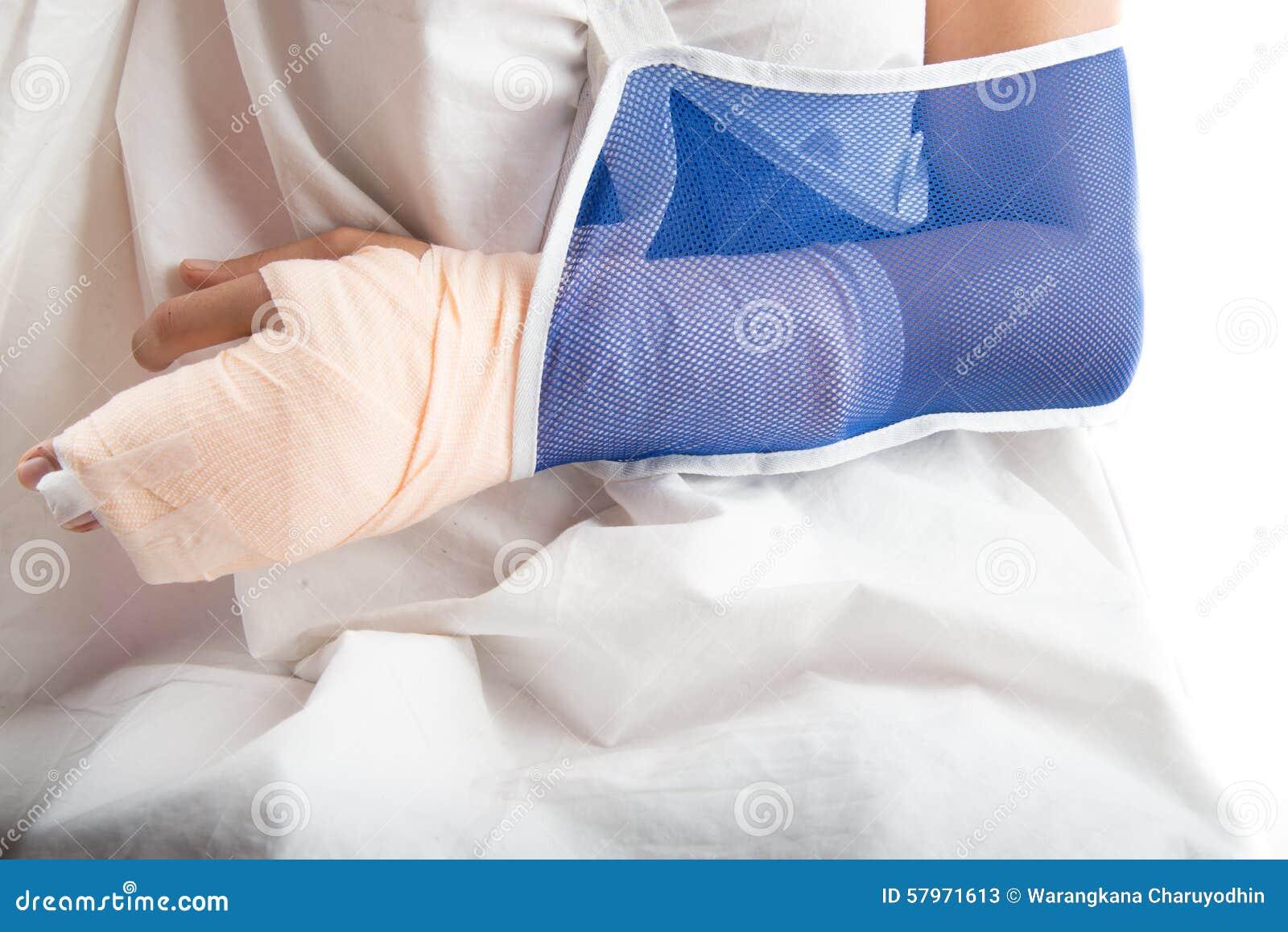 妇女从与胳膊吊索的事故伤的手骨头.图片
