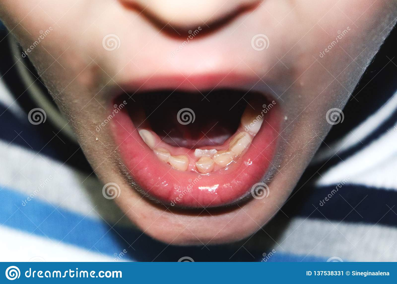 Ändernde Milchzähne Ein Übersatz Zähne, die boy's Milchzähne haben nicht noch herausgefallen, aber einheimisch