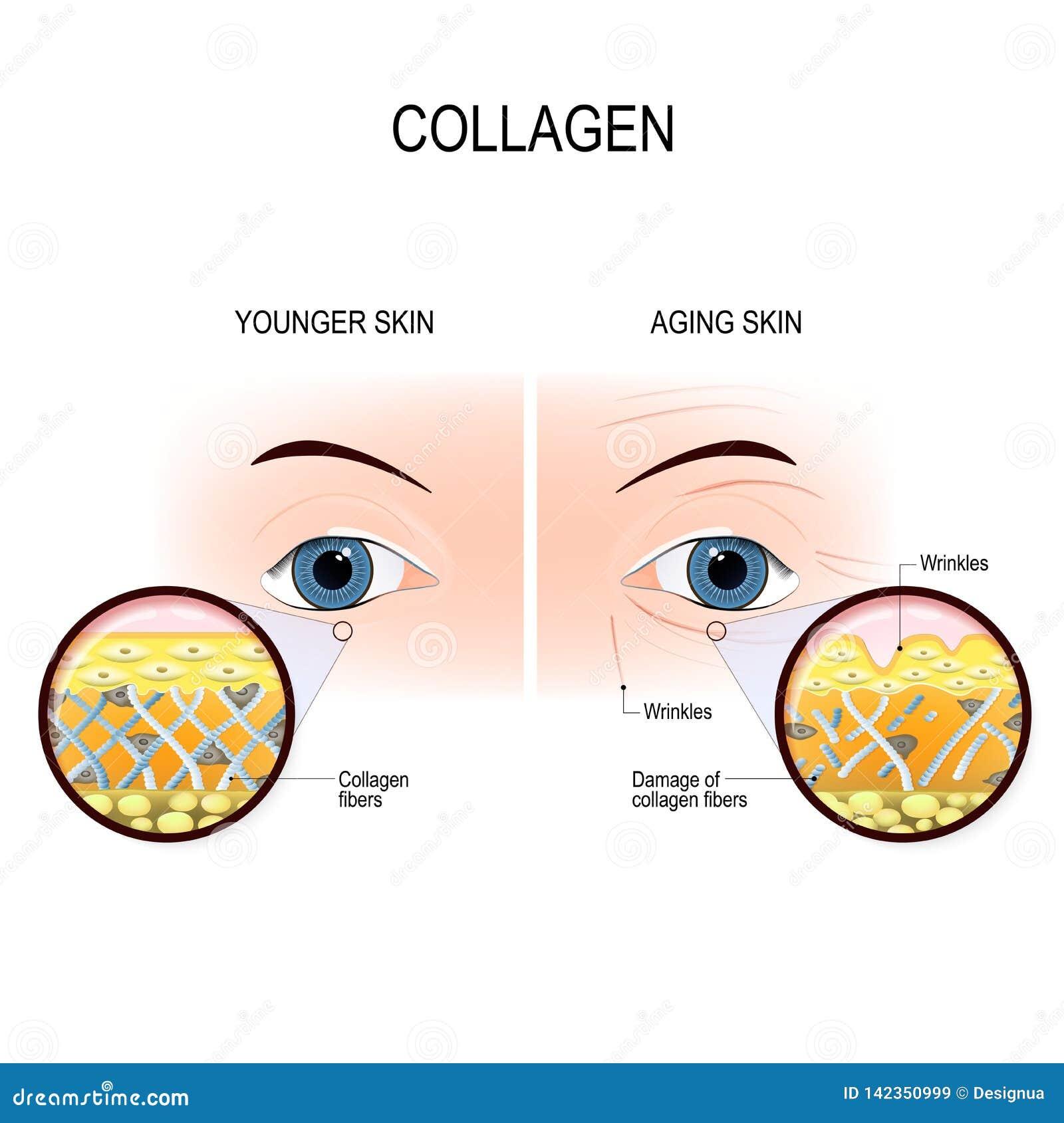Åldras för hud och collagenskada
