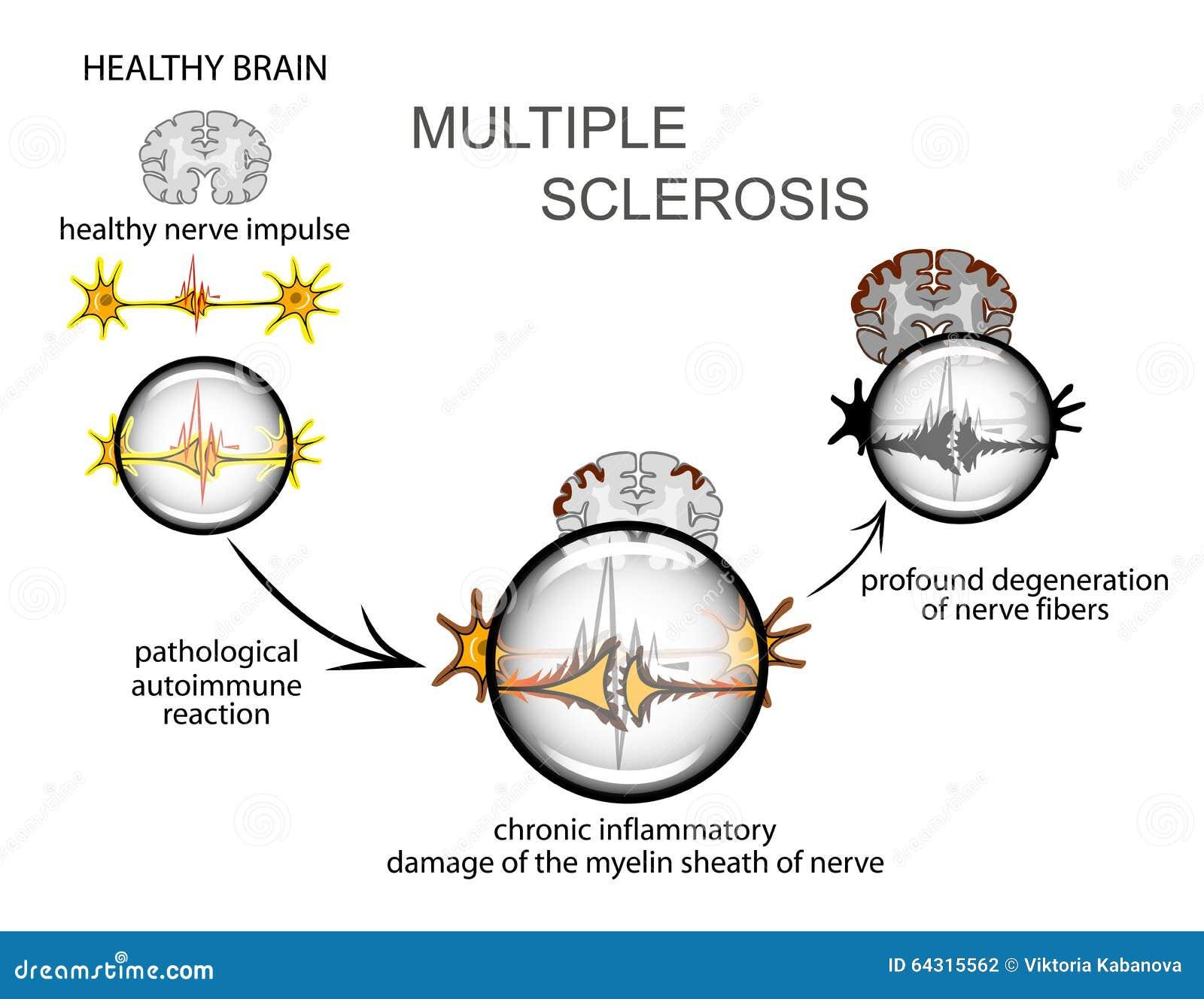 åtskillig sclerosis neurology