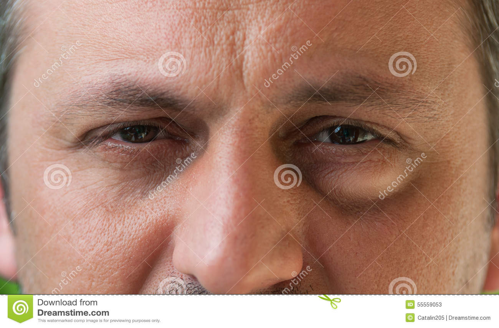 Één oog met bindvliesontsteking