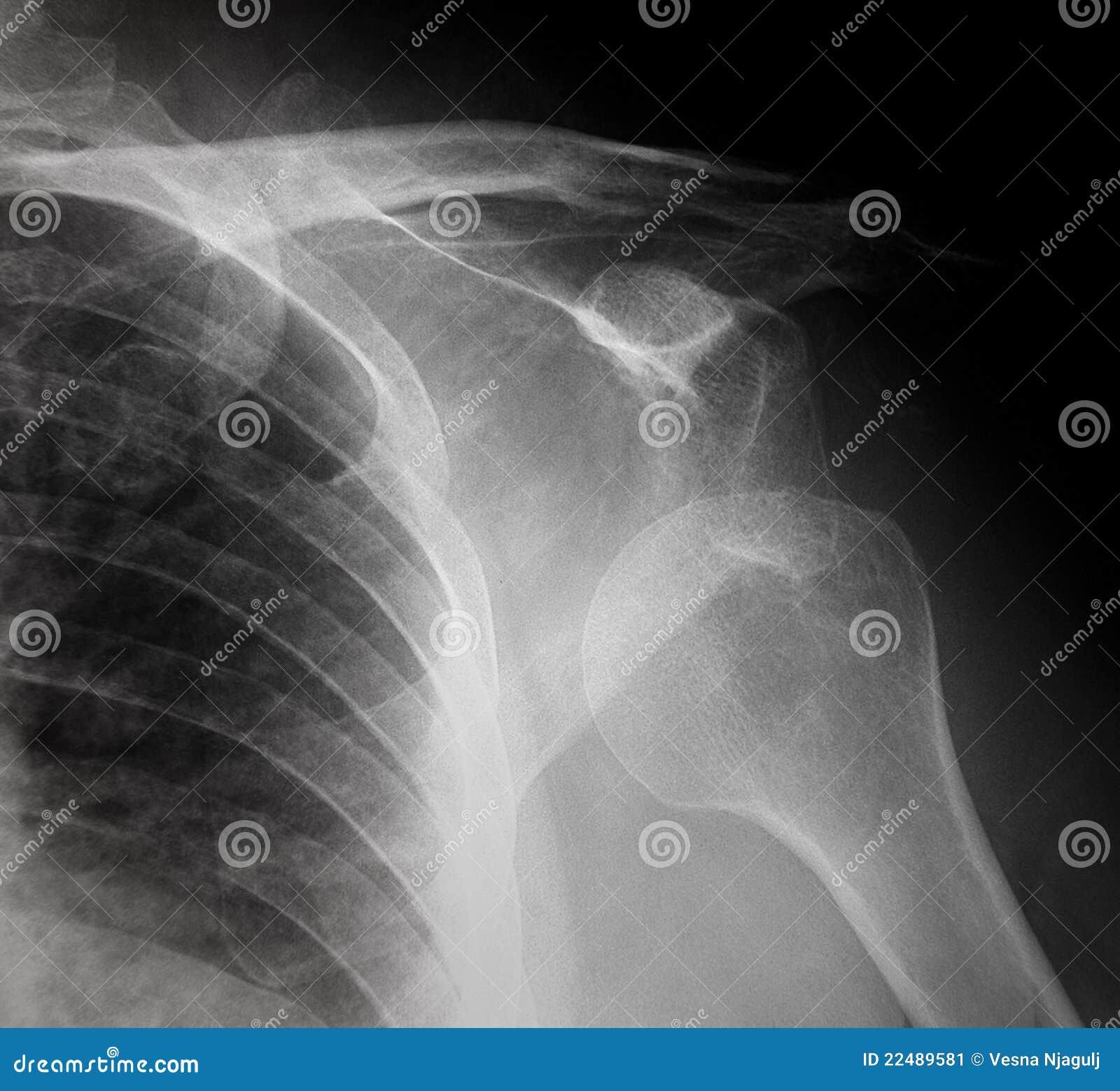 Épaule déplacée par rayon X - radiographie