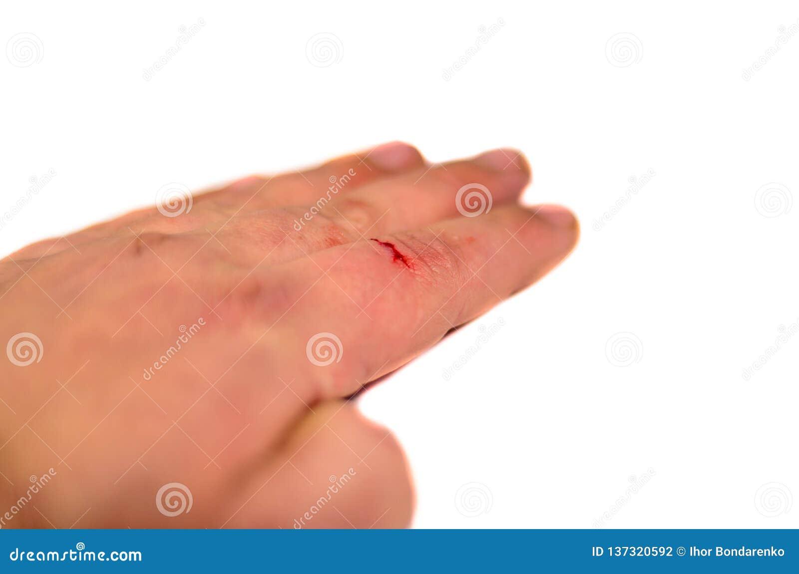 Мужская рука при палец кровотечения изолированный на белой предпосылке