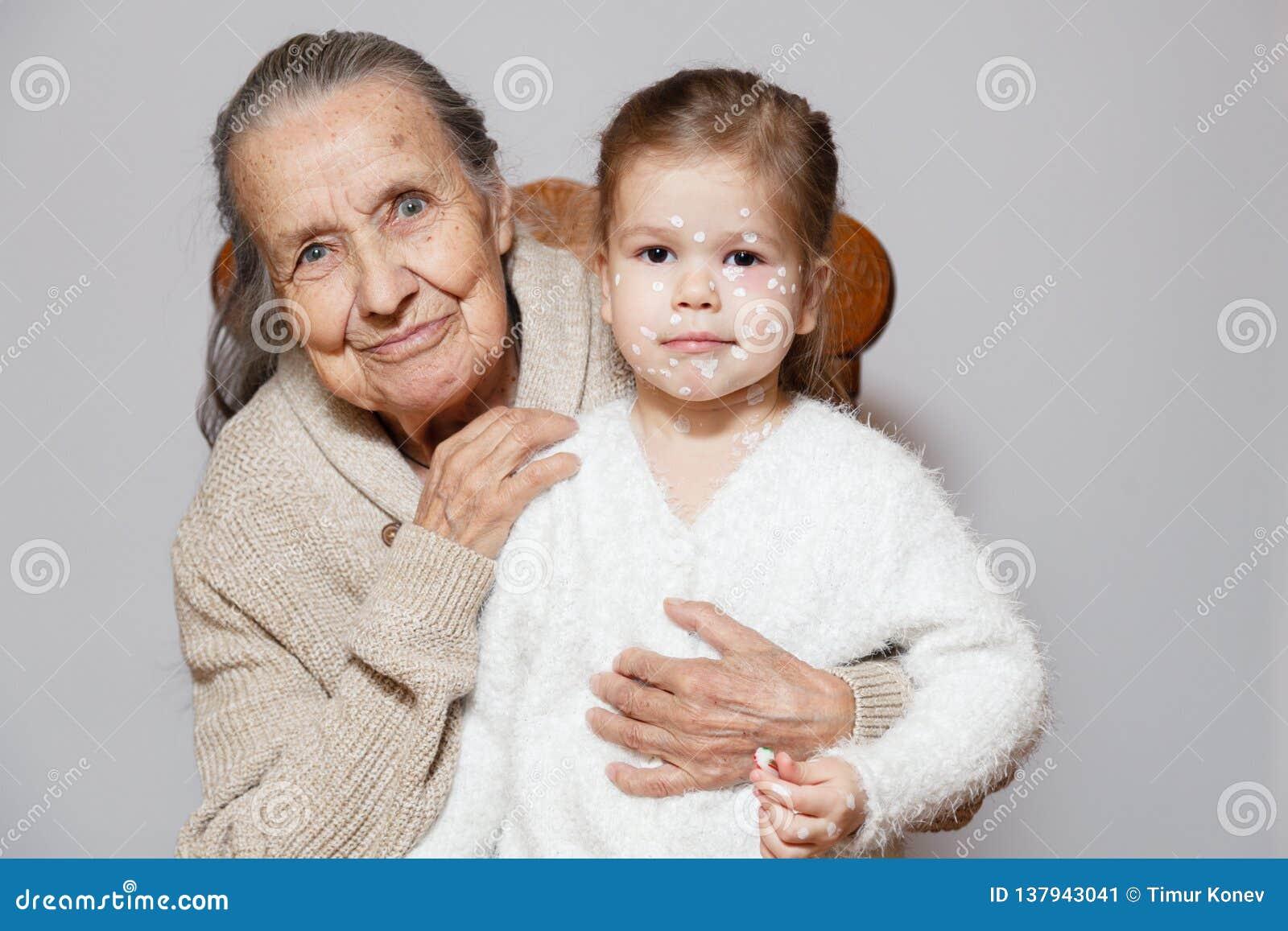 Ð ¡ pikapu szarość tęsk z włosami babcia w trykotowej pulowerów uściśnięć wnuczce z kurczaka pox, biel kropki, bąble na twarzy Po