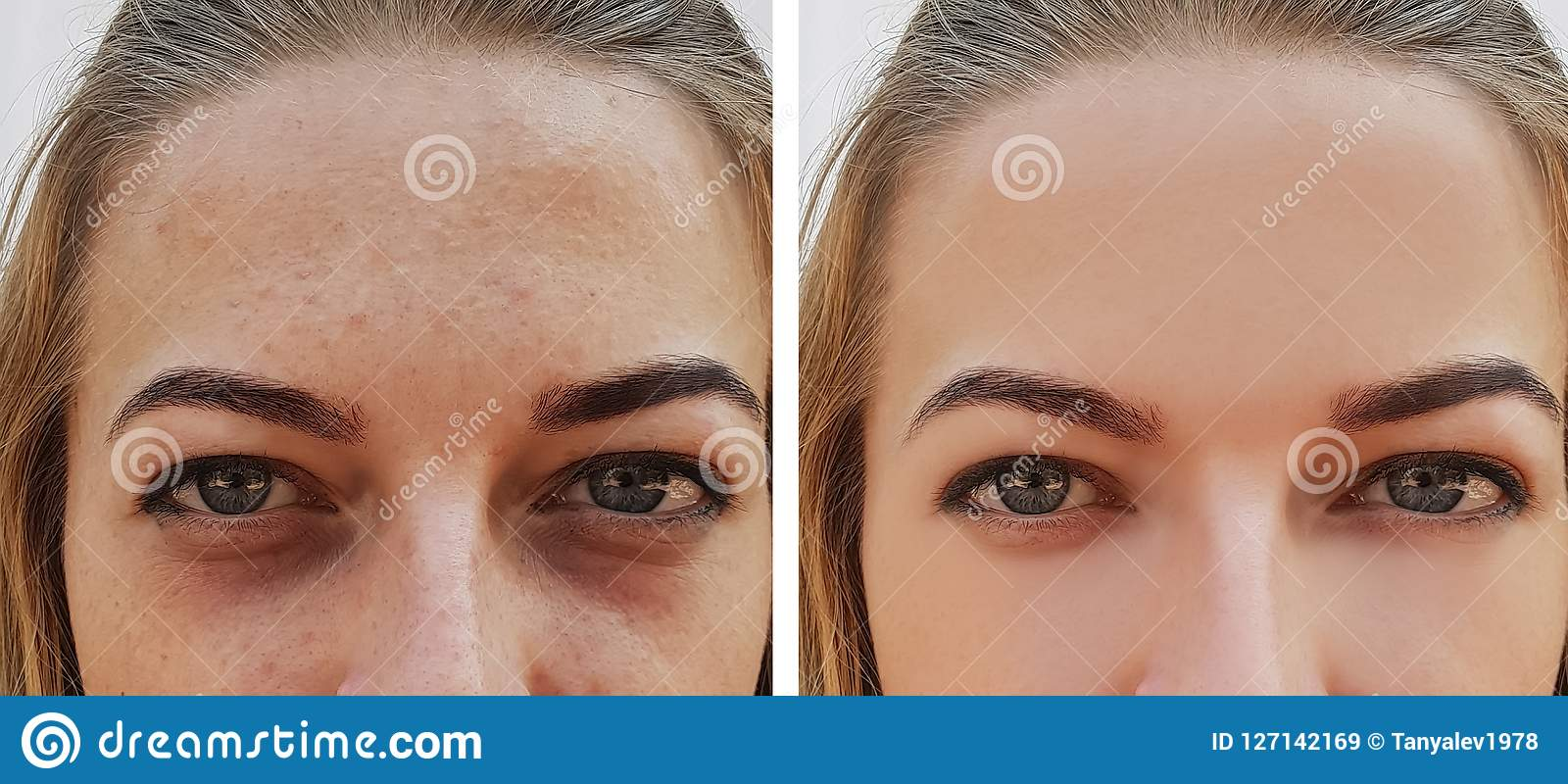Ögonflickapåse under för behandlingskönhetsmedel för ögon före och efter tillvägagångssätten