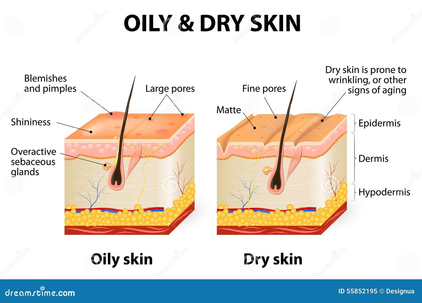 Ölige u. trockene Haut
