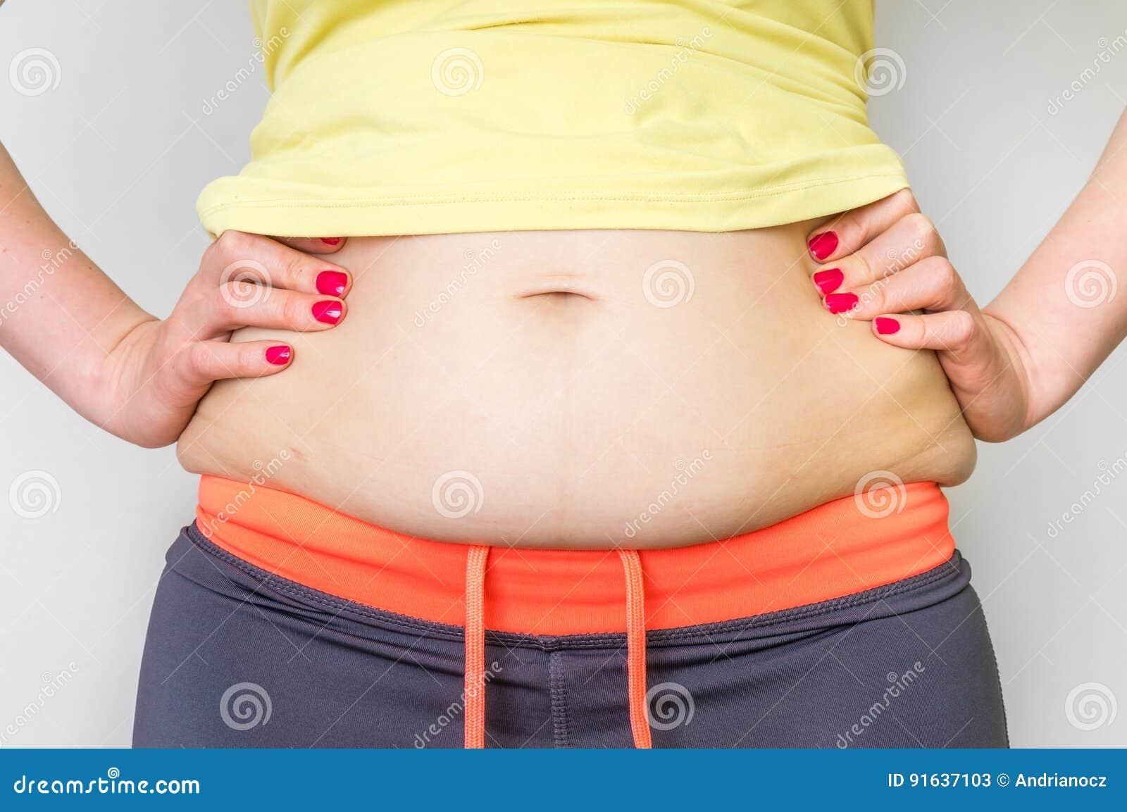Überladener Frauenkörper mit Fett auf Hüften - Korpulenzkonzept