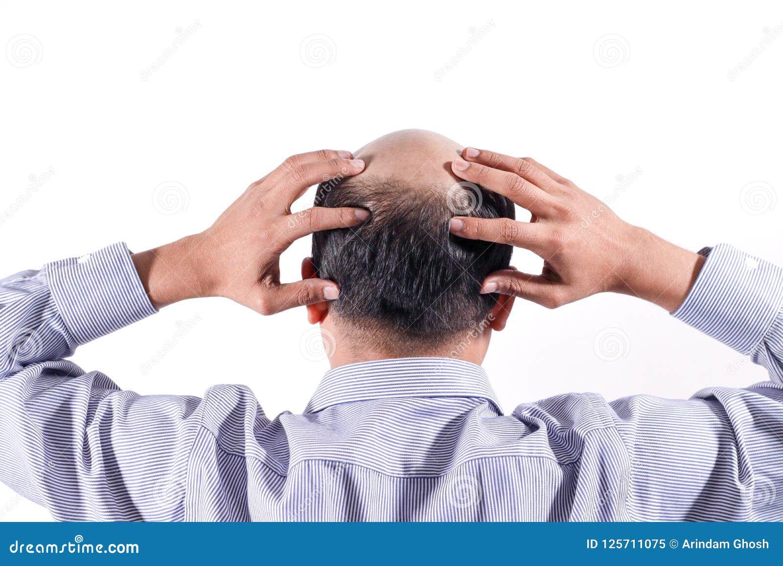 Łysy biznesmen z jego głową na skalpu widoku od behind z wh