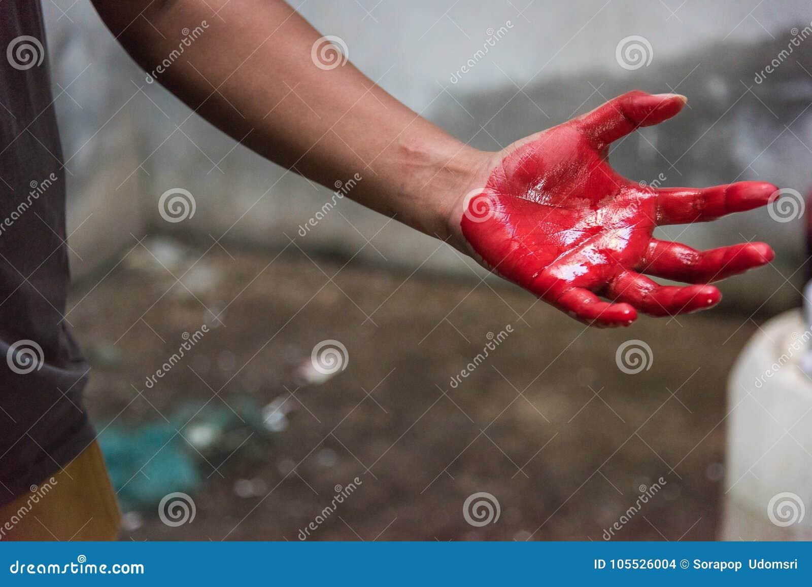 Άτομο χεριών που καλύπτεται στο πολύ αιματηρό κόκκινο μετά από το ατύχημα