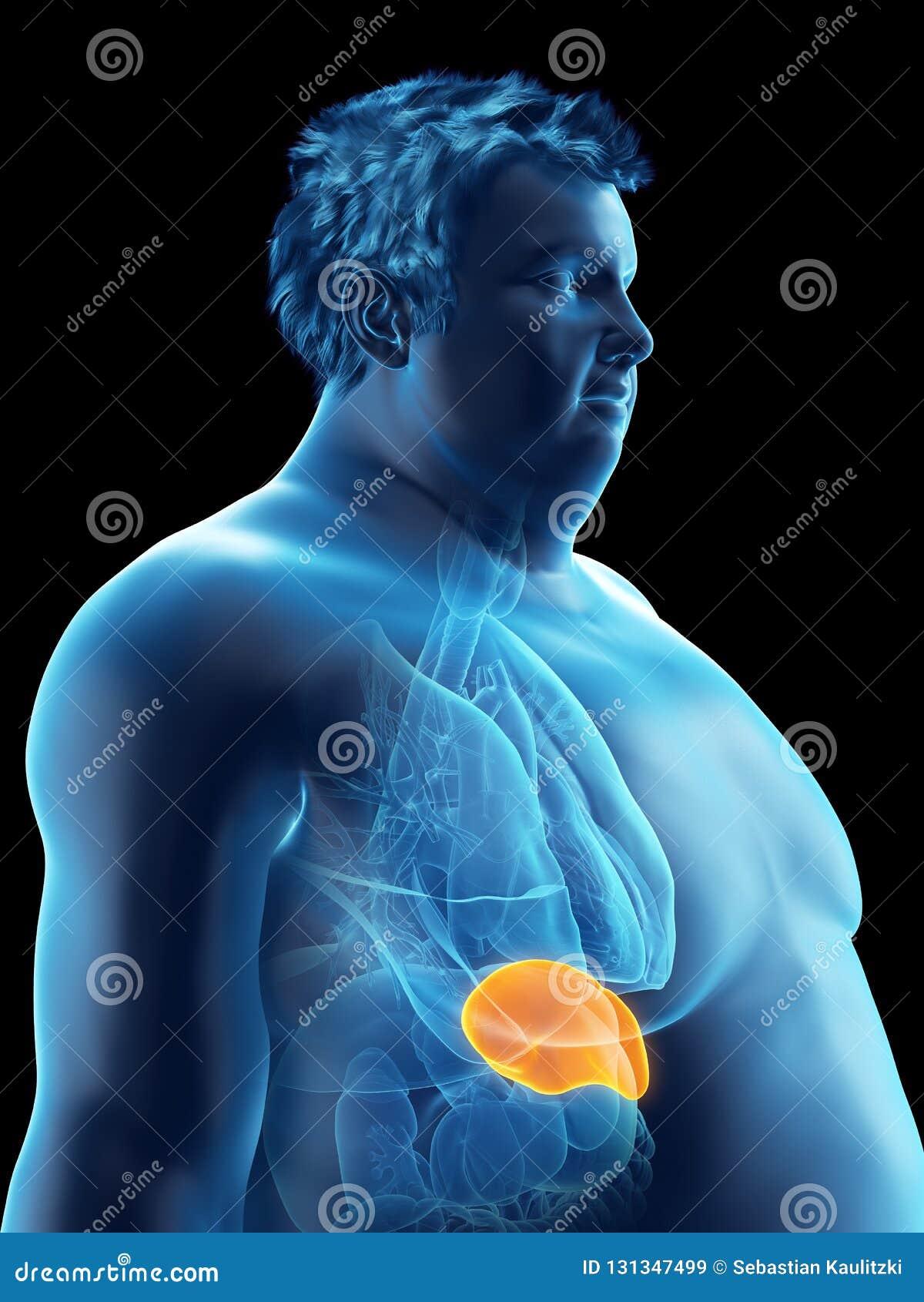 Ένας παχύσαρκος επανδρώνει τη σπλήνα