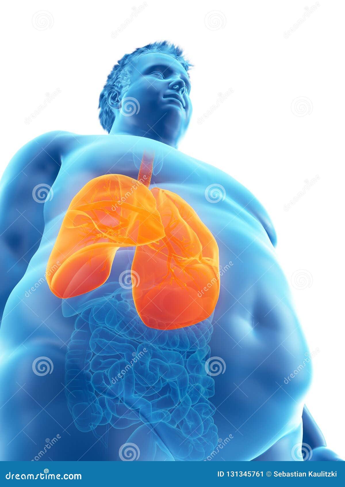 Ένας παχύσαρκος επανδρώνει τους πνεύμονες