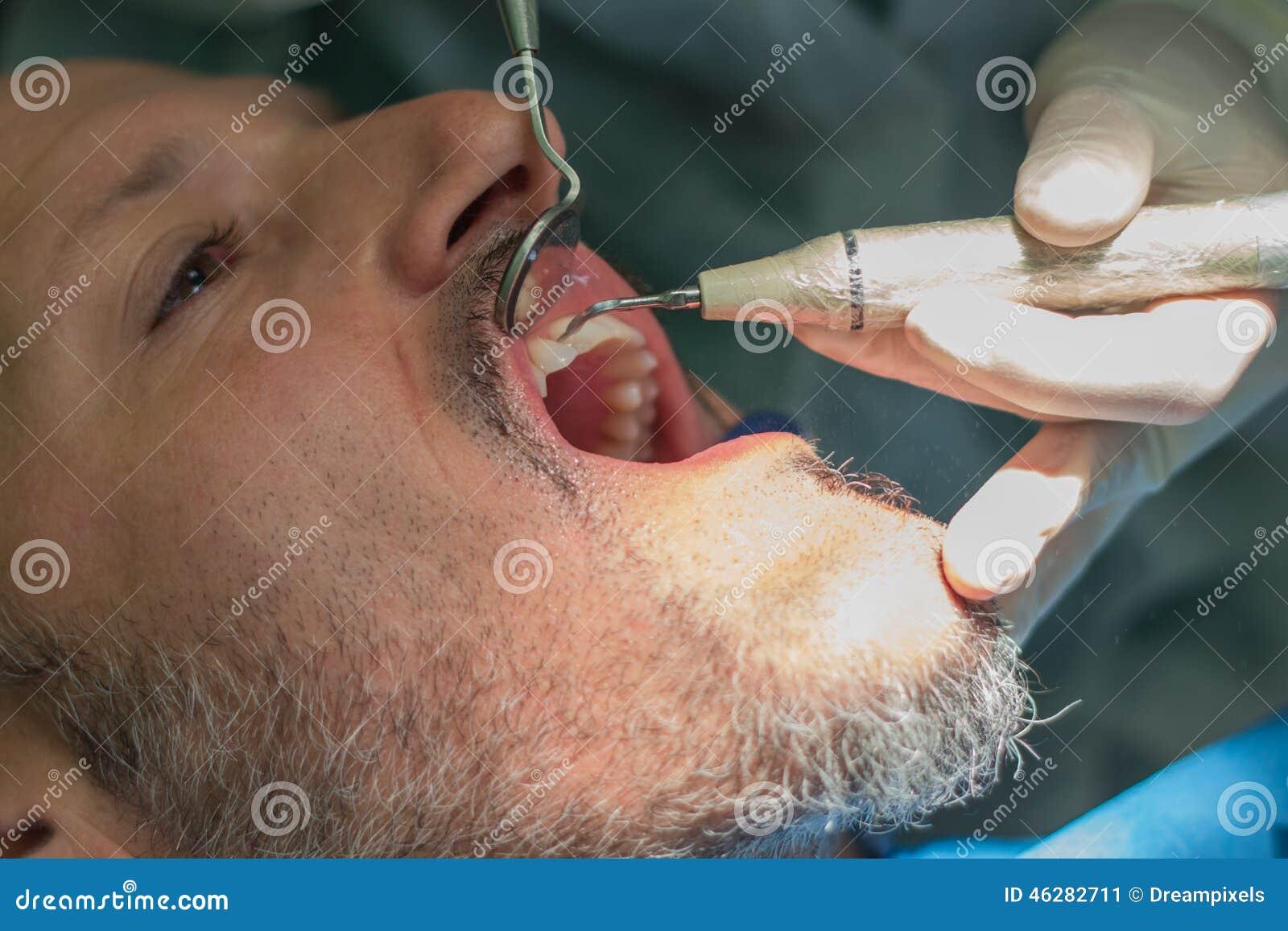 Ένα μέσο ηλικίας άτομο στην οδοντική κλινική ο οδοντίατρος checke τα δόντια του