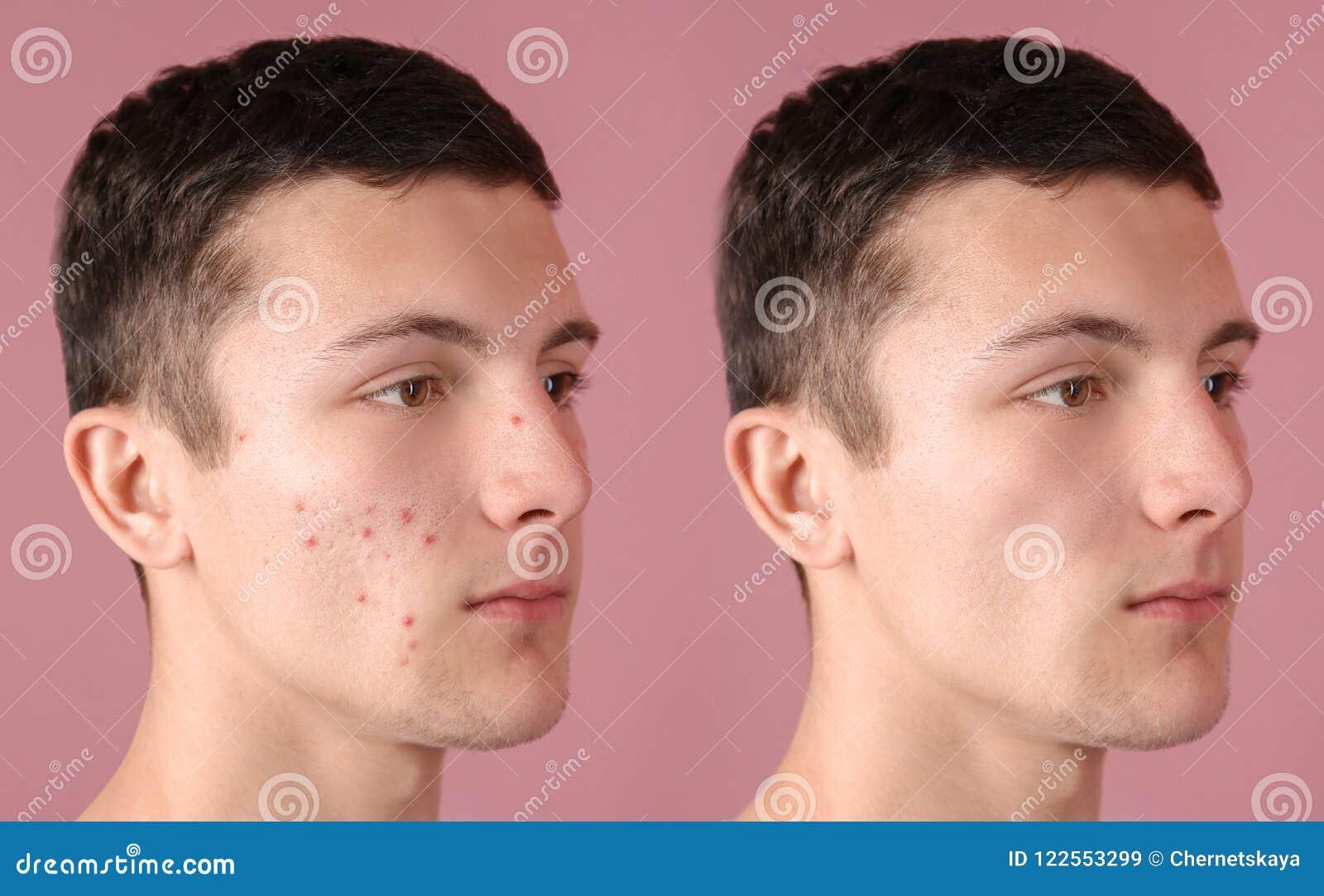 Έφηβος πριν και μετά από την επεξεργασία ακμής