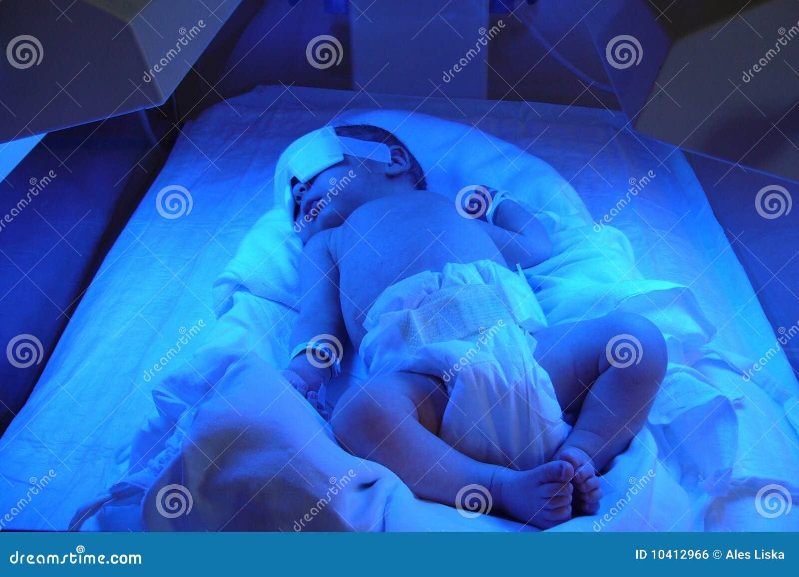 ίκτερος νεογέννητος