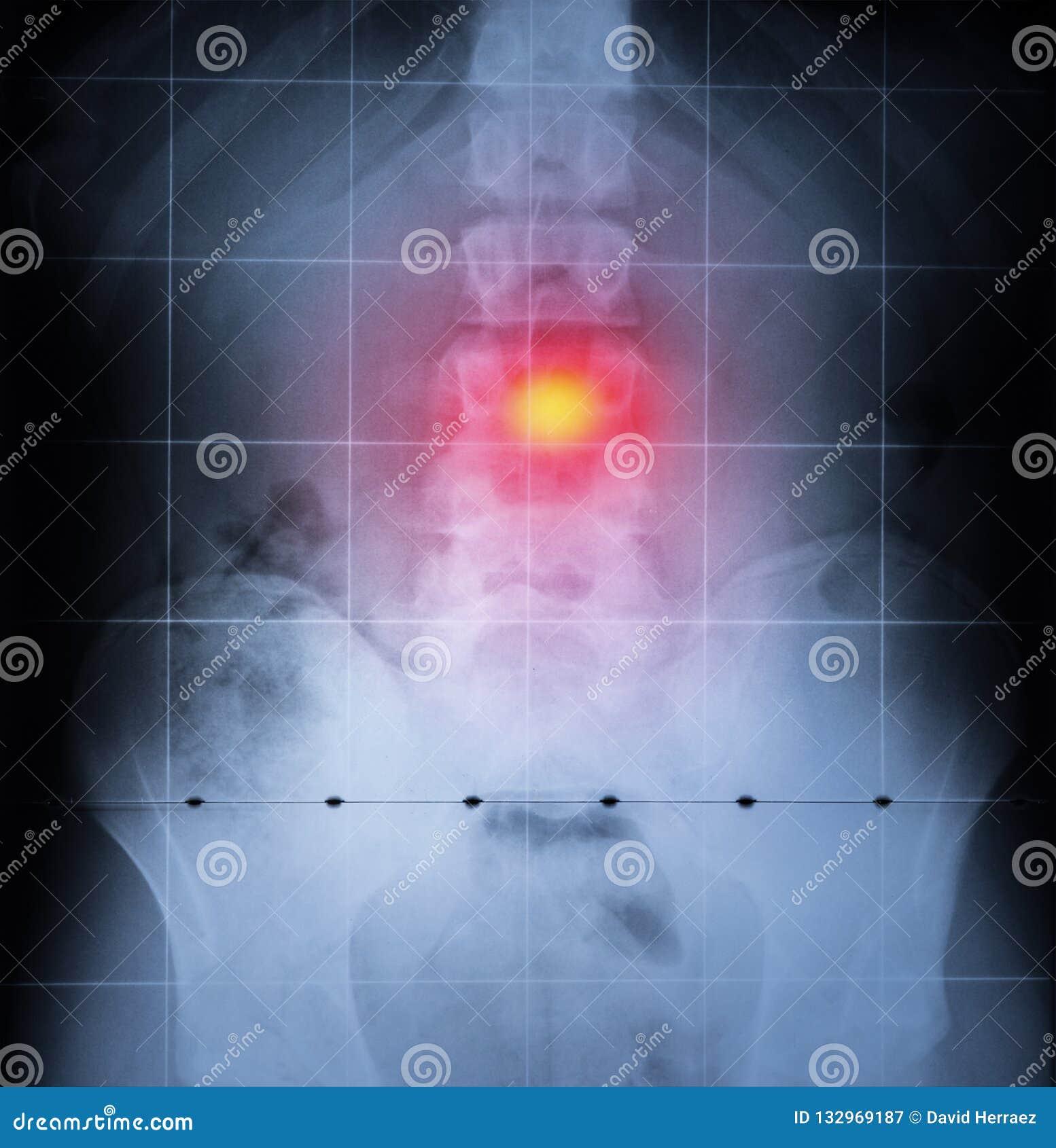 Ακτίνα X, σπονδυλική στήλη και λεκάνη του ανθρώπινου σώματος Πόνος στην πλάτη που τονίζεται στο κόκκινο