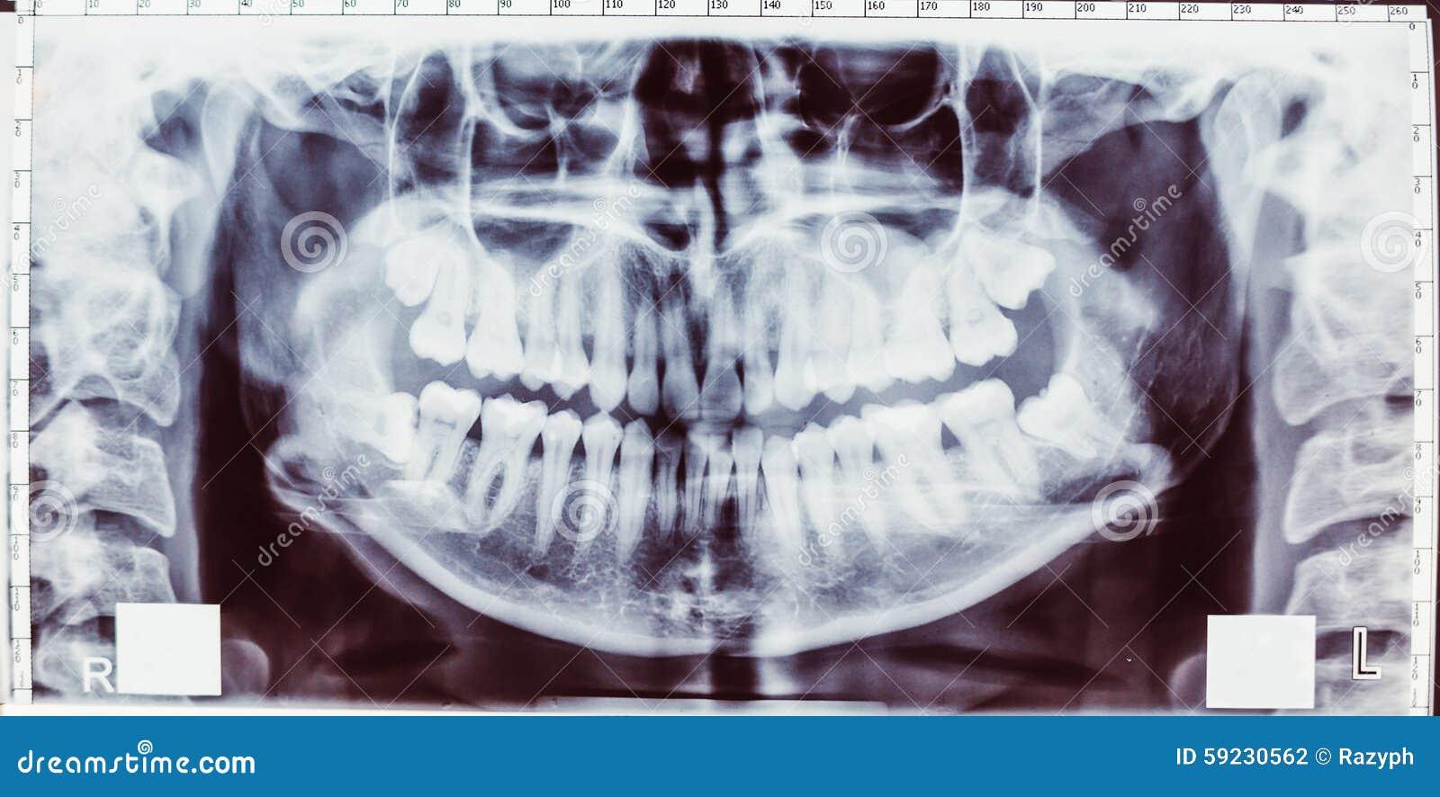 ακτινογραφία δοντιών