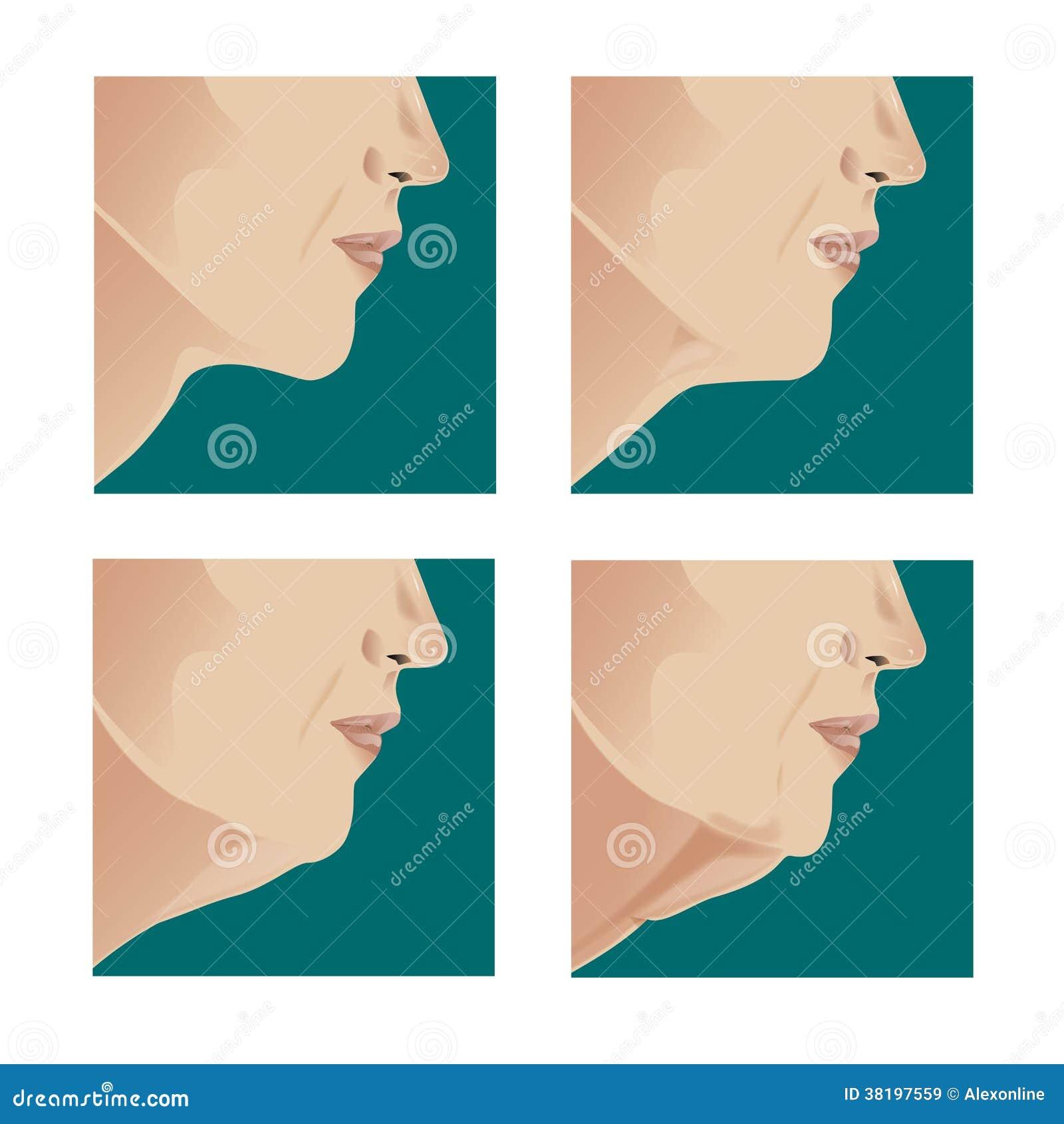 Ανελκυστήρας λαιμών