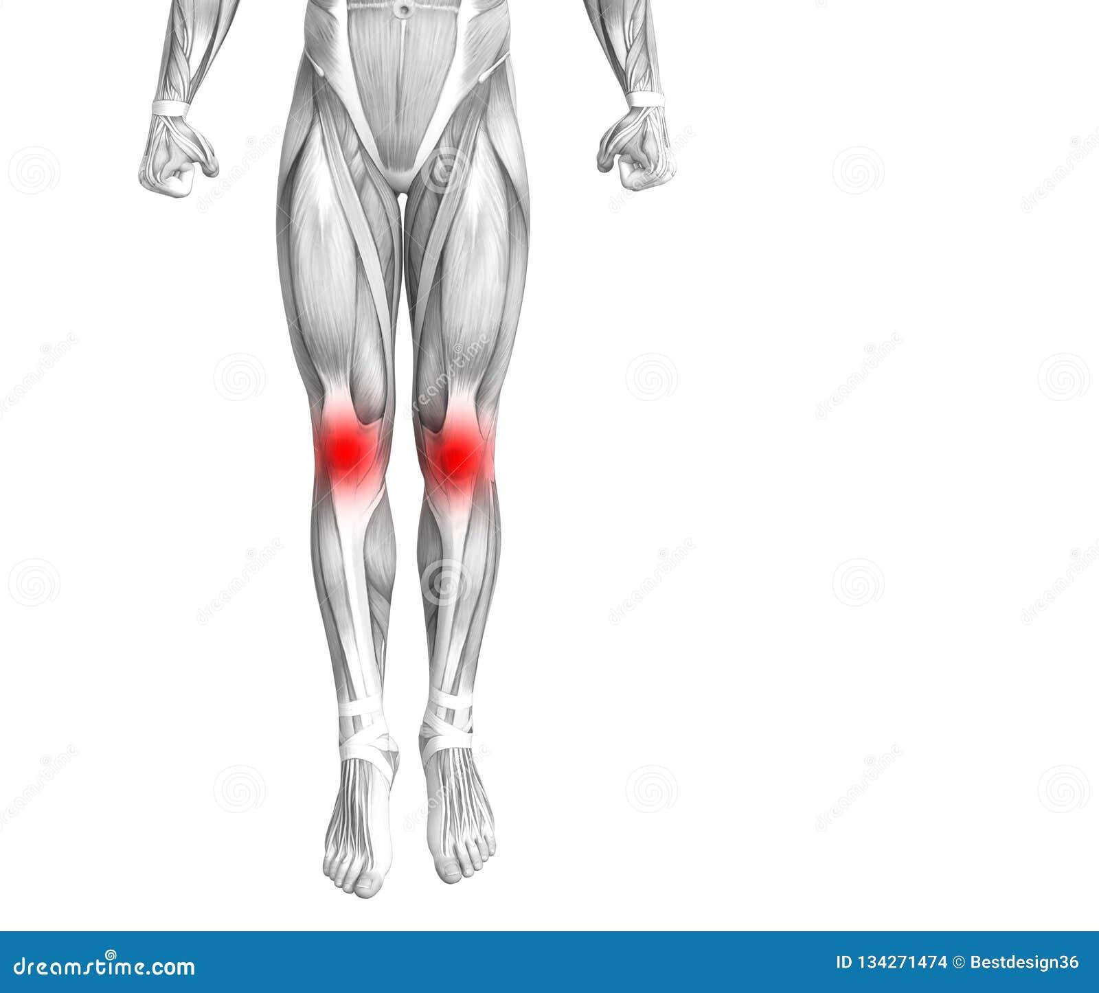 Ανθρώπινη ανατομία γονάτων με το κόκκινο - ανάφλεξη καυτών σημείων