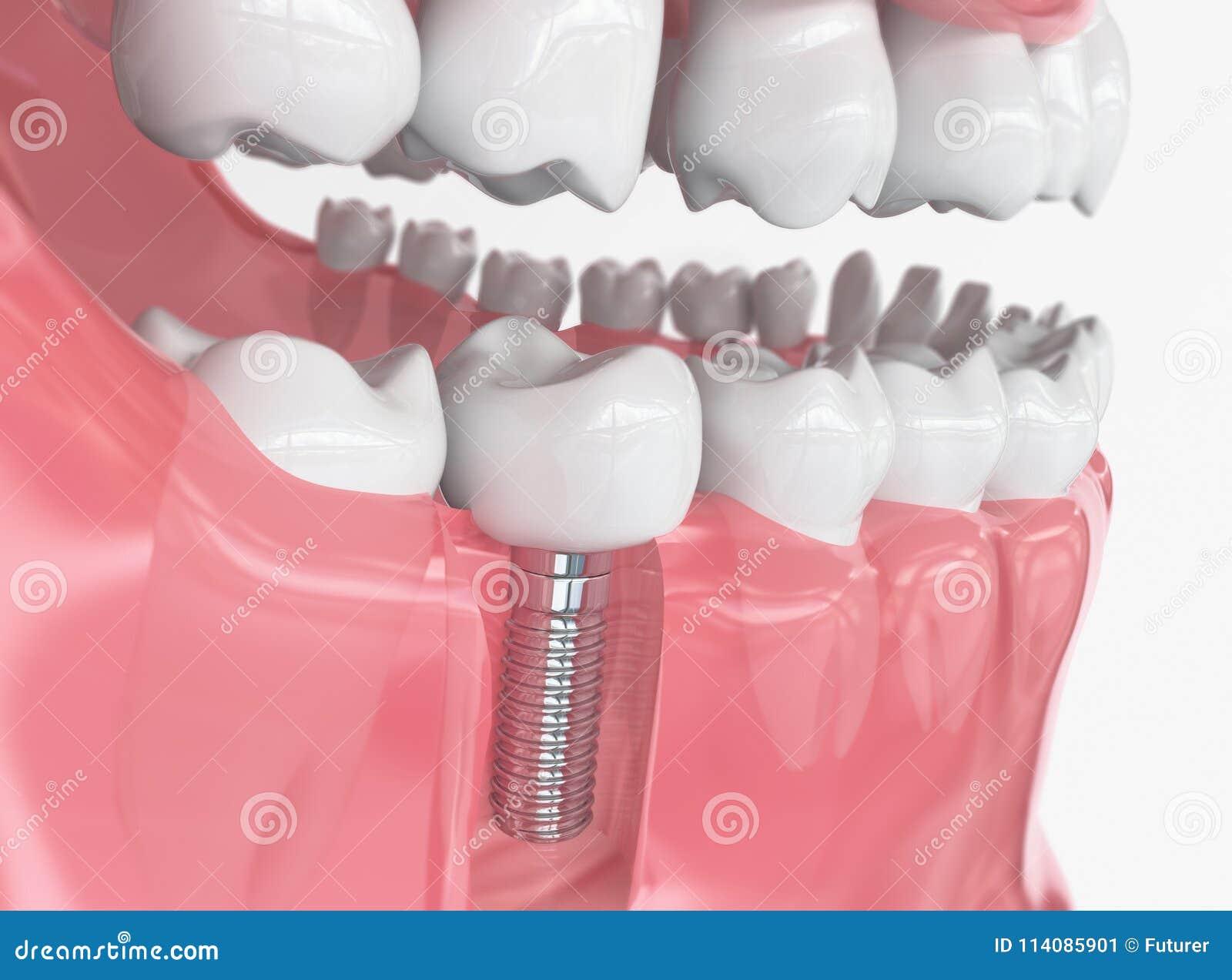 Ανθρώπινο μόσχευμα δοντιών - τρισδιάστατη απόδοση
