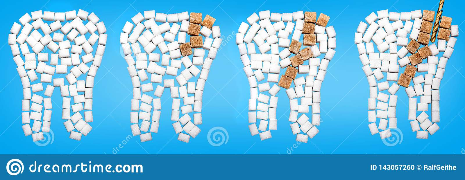 Από χαλασμένα τα τερηδόνα δόντια από τη ζάχαρη σε ένα μπλε κλίμα