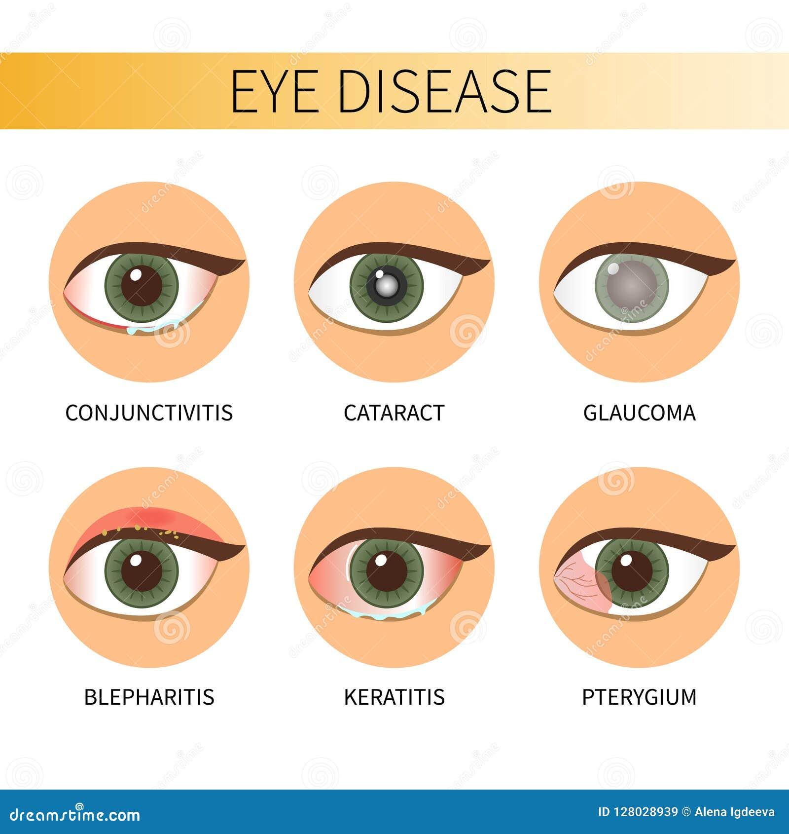 543c41bfb0 Ασθένεια ματιών Infographic Διανυσματική απεικόνιση - εικονογραφία ...
