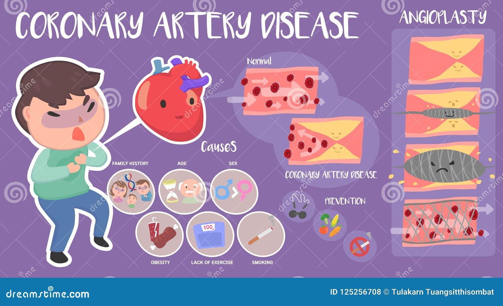 Ασθένεια στεφανιαίων αρτηριών infographic