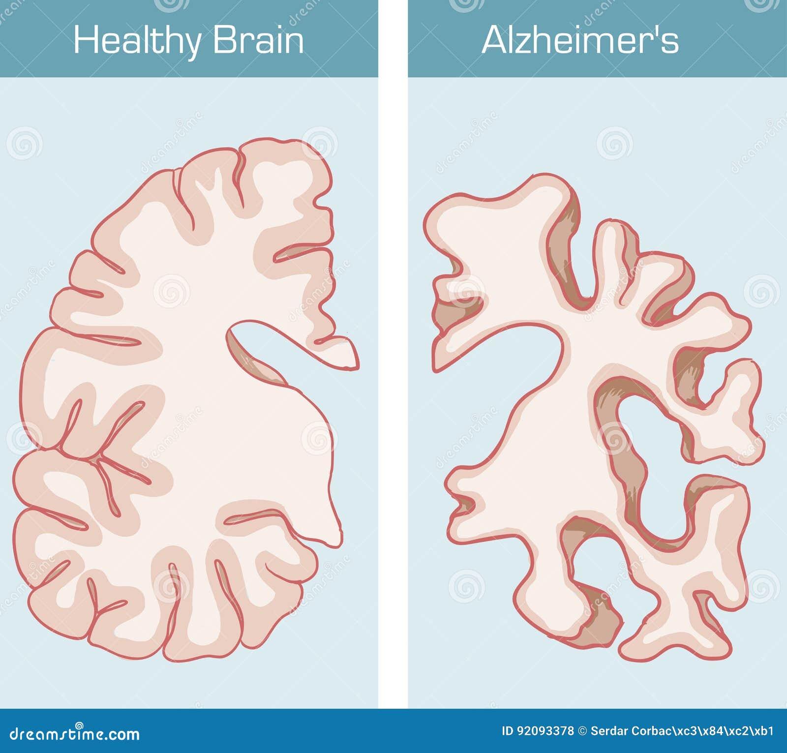 Ασθένεια του Alzheimer ` s